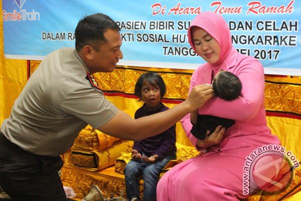Polres Aceh Barat adakan operasi bibir sumbing