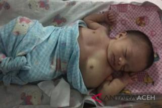 Bayi derita tumor ganas butuh donasi