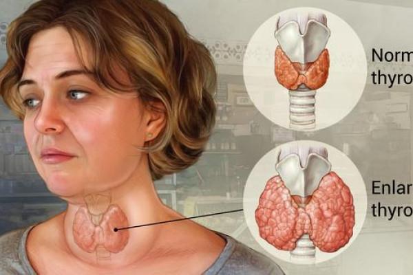 Ambon - Vlissingen jajaki operasi tiroid