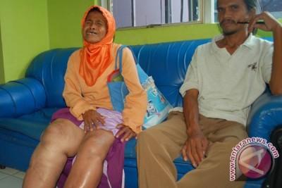 Karawang Siapkan Obat Filariasis 2,2 Juta Penduduk