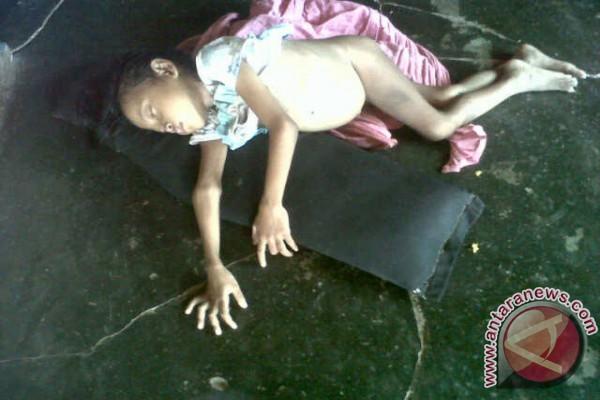 KPAD Lakukan Pendampingan Krpada Anak Gizi Buruk