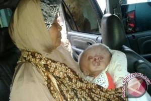 Pemkab Sukabumi Bantu Pengobatan Bayi Hydrocephalus