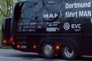 Bus Tim Borussia Dortmund Diserang Ledakan, Seorang Pemain Luka