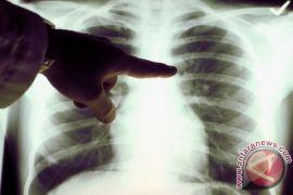 Doktor UI temukan deteksi kanker melalui napas
