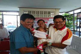 Pemkot Denpasar gelar operasi bibir sumbing gratis
