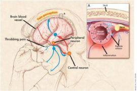 Makanan yang bisa bantu atasi migrain