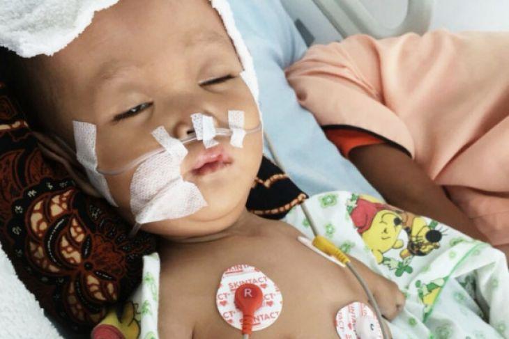 Lintang, bayi pengidap peradangan otak di Jambi butuh uluran tangan