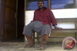 Tujuh Penderita Kaki Gajah Meninggal di Sintang