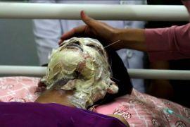 Korban tewas akibat ledakan sumur minyak  21 orang