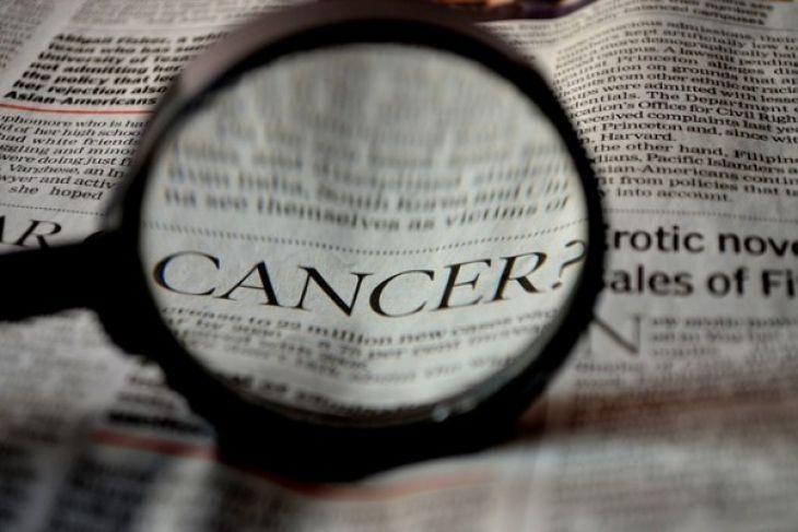 Ini alasan kanker disebut kanker