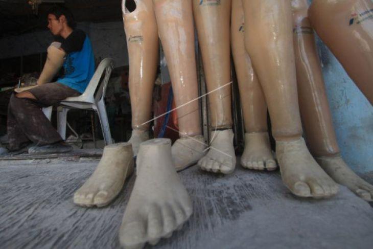 Wali Kota Singkawang bantu warga kaki palsu
