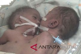 Bayi kembar siam dempet dada lahir di RSUD Paser
