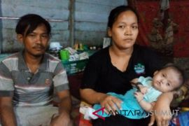 Kasus gizi buruk bertambah di Tanjungbalai