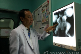 Bayi Kembar Siam Dempet Perut dalam Keadaan Stabil (Video)