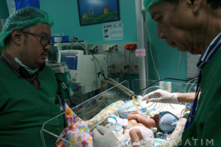 Bayi Kembar Siam Dempet Perut Jalani Operasi Darurat