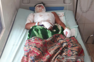 Dua Warga Situbondo Terluka Akibat  Ledakan Petasan